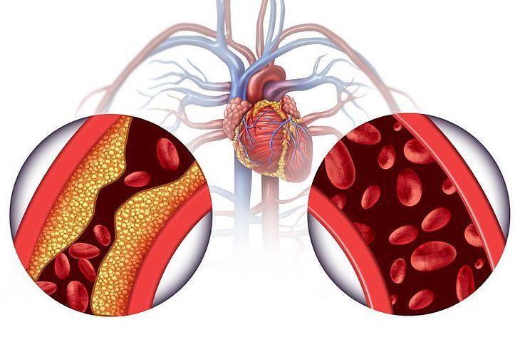 Znalezione obrazy dla zapytania zawał mięśnia sercowego