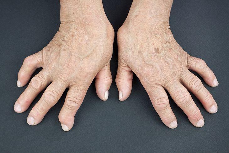 Znalezione obrazy dla zapytania Reumatoidalne zapalenie stawów