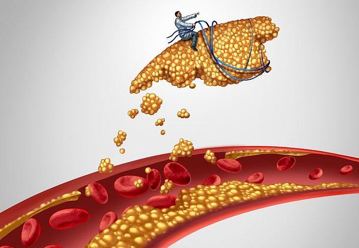 Cholesterol Norma Dobry I Zly Cholesterol Hdl Ldl Jak Obnizyc